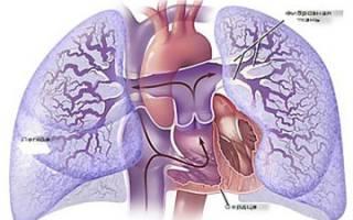 Гипертензия сердца у новорожденных
