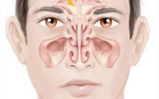 Давление в носу при наклоне головы