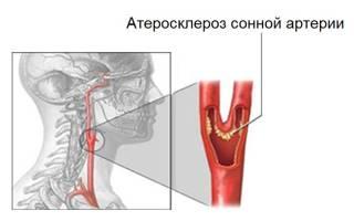 Атеросклеротическая бляшка в сонной артерии лечение