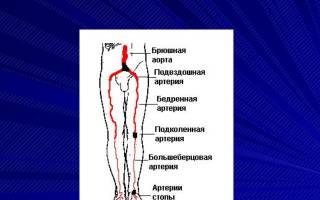 Ишемия нижних конечностей презентация
