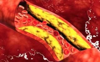Анализ крови на липопротеин