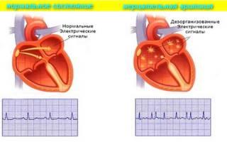 Аритмия сердца симптомы лечение первая помощь узи сердца