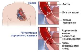 Как вылечить аортальную недостаточность 1 степени