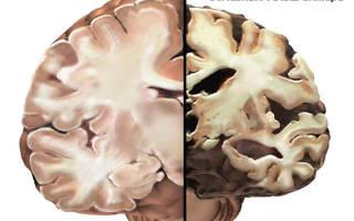 Альцгеймера болезнь стадии