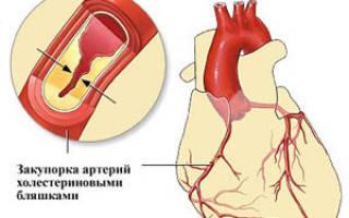 Инфаркт по задней стенке левого желудочка