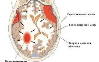 Гематома в голове после удара симптомы