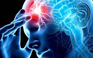 Ишемический инфаркт головного мозга симптомы