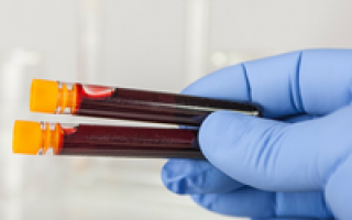 Индекс распределения тромбоцитов повышен что это
