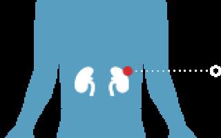 Как избежать почечной недостаточности при гломерулонефрите