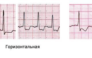 Ишемия миокарда левого желудочка экг