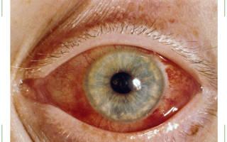 Жалобы при остром приступе глаукомы