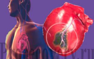 Инфаркт миокарда рекомендации 2017