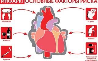 Инфаркт миокарда по задней стенке на экг