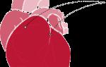 Инфаркт миокарда стентирование сосудов