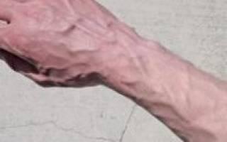 Вены на руках толстые