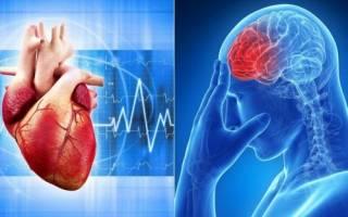Как избежать инфаркта и инсульта при ишемической болезни сердца