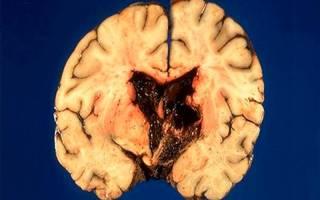Внутрижелудочковое кровоизлияние у взрослых