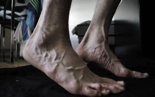 Вертеброгенная полинейропатия нижних конечностей