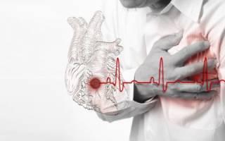 Гипертонический криз инфаркт миокарда