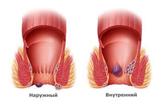 Геморроидальный тромбоз лечение