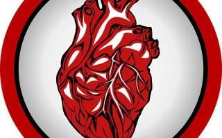 Инфаркт от переедания