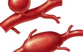 Аневризма брюшной аорты симптомы диагностика