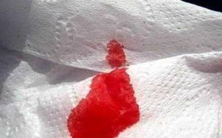 Из за чего идет кровь из заднего прохода