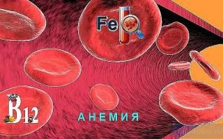 Анемия что это за болезнь
