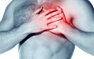 Как меняется давление при сердечном приступе