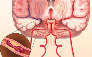 Атеросклероз экстракраниальных сегментов магистральных артерий головы