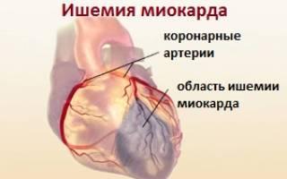 Дилатационная кардиомиопатия ишемическая