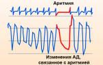 Аритмия что пить лекарство