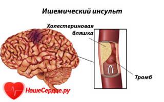 Инсульт ишемический что делать
