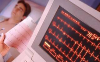 Диагностика инфаркта миокарда по крови