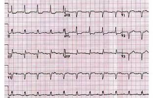 Инфаркт миокарда экг локализация