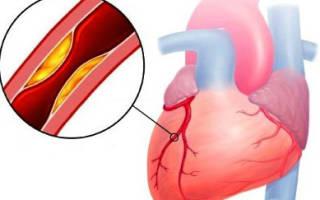 Диагностика ибс нестабильная стенокардия