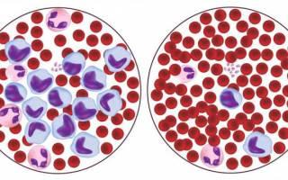 Высокие лимфоциты в крови