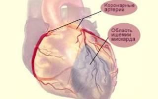 Как выглядит инфаркт на экг картинки и фото