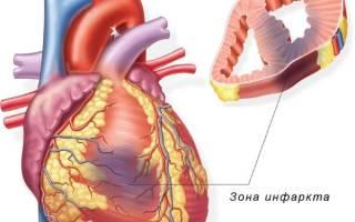 Инфаркт миокарда на ногах