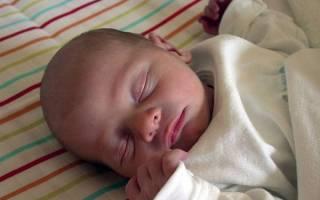 Ишемия мозга 1 степени острый период у новорожденных