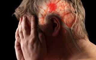 Инфаркт головного мозга википедия
