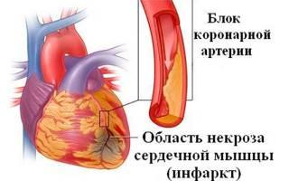 Инфаркт это вид некроза