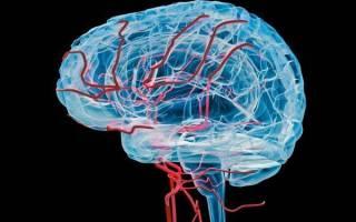 Гипоплазия головного мозга что это