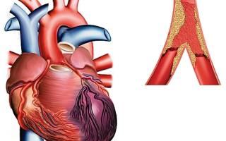 Если перенес инфаркт