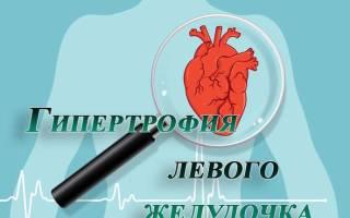 Гипертония левого желудочка сердца