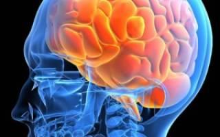 Врожденная гипертензия головного мозга