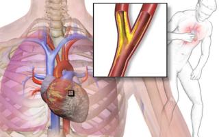 Инфаркт и инфаркт миокарда это одно и тоже