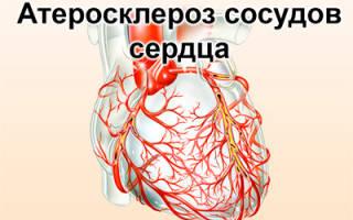 Инфаркт миокарда задней стенки что это такое