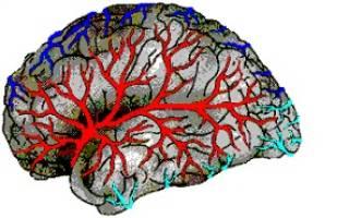 Заболевания сосудов головного мозга список