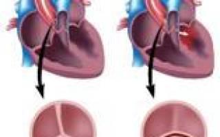 Врожденный порок сердца аортальный двустворчатый